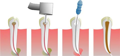 endodontsko-lechenie